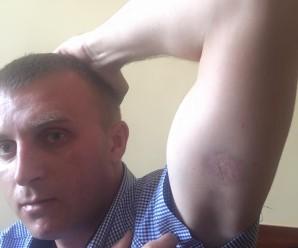 Начальник франківської патрульної поліції Дмитро Міхалець прокоментував звинувачення у побитті інваліда АТО.