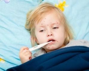 На Прикарпатті зареєстровано 56 випадків захворювання на кір