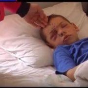 Франківські медики намагаються відновити зір семирічного хлопчика, який постраждав від вибуху. ВІДЕО