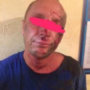 Покидьок затриманий: В Одесі вітчим вбив двох дітей (фото)