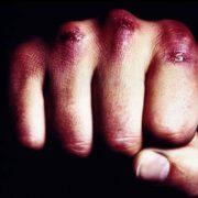 В Івано-Франківську за ніч трапились дві бійки: постраждали п'ятеро людей