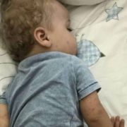 Коксакі атакує: сім'я українців заразилася в елітному готелі Туреччини