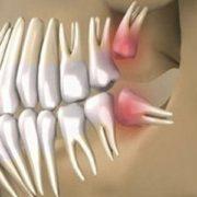 Тепер ви можете виростити власні зуби за 9 тижнів