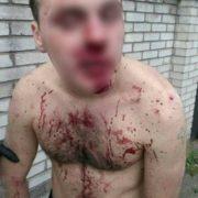 В Івано-Франківську жорстоко побили 18-річного хлопця (ФОТО)