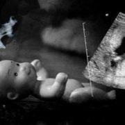 Недбалість лікарів чи куріння матері? На Хмельниччині за загадкових обставин померло немовля, прямо в утробі матері