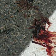 П'яну 13-річну школярку збило авто: подробиці нічної ДТП