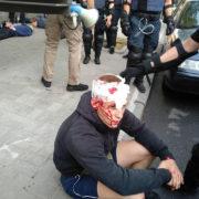 """""""Ні поліцейському свавіллю!"""". У Франківську націоналісти пікетують обласне управління поліції (відео)"""
