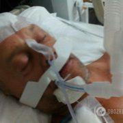У Туреччині помер жорстоко побитий росіянином український турист