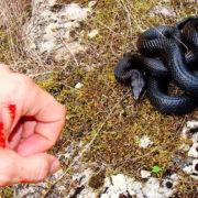 На Прикарпатті чоловік потрапив до реанімації через укус змії