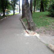 Відповідає на питання, кліпаючи очима: хлопчик, який на велосипеді врізався у дерево, вийшов з коми