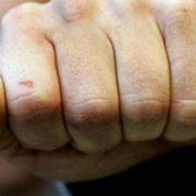 На Київщині двоє молодиків жорстоко побили жінку через прохання не смітити