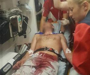На Франківщині 15-річний жебрак порізав туриста за відмову надати милостиню (відео)
