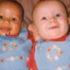 Ці двійнята народилися з різним кольором шкіри, але набагато цікавіше те, як вони виглядають 18 років по тому