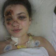 Дівчата, яких у Побережжі збила автівка, одужують – медики
