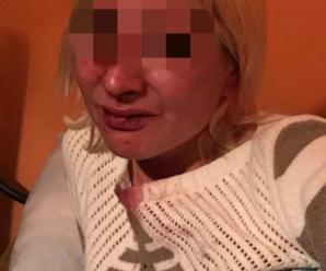 Повільно готувала каву: чоловік у кафе побив працівницю