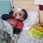 На Вінничині пасажири електрички врятували дитину від батьків, які нещадно били свого сина
