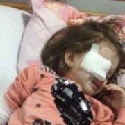 Назріває новий скандал: під час бійки в дитсадку  дівчинці проткнули око олівцем