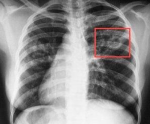 Перебіг більшості випадків туберкульозу є безсимптомним — лікар-фтизіатр Дмитро Пронь