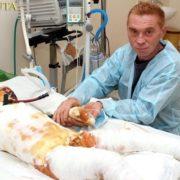 На Миколаївщині від хлопчика, якого вдарило струмом у 27 тис вольт, відмовилися батьки