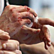 На Франківщині чоловік жорстоко побив адміністраторку кафе через сварку з колишньою дружиною