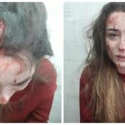 Не те написала у соцмережі: Молодій дівчині розбили голову (Фото)
