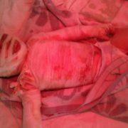 2-річний Іванко впав до 40-літрової каструлі з окропом