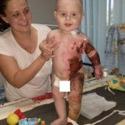 """""""Боліло сильно"""": стан немовляти, яке отримало страшні опіки, змінився, сім'я знову просить про допомогу"""