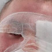 У Калуші конфлікт завершився ампутацією ока: зловмисник чекатиме вироку в СІЗО