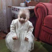 Семирічні дівчатка з тілом 60-річних: в Україні – двоє діток із хворобою передчасного старіння