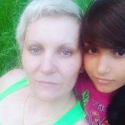 13-річну дівчину понівечив струм, коли робила фото для матері: Батьки просять допомогти зібрати гроші на лікування