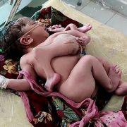 Жінка народила дитину з чотирма ногами і трьома руками