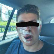 Били, поки подавав ознаки життя: у Польщі п'ятеро чоловіків жорстоко побили студента, бо він з України (фото)