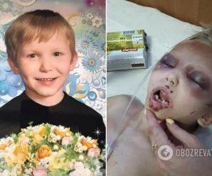 Колола голкою, різала тіло і забороняла плакати: мати по-звірячому знущалася над маленьким сином (фото 18+)