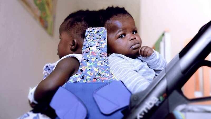 У Ватикані вперше у світі успішно розділили сіамських близнят, що ...